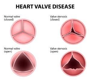 อาการที่พบบ่อยที่สุดของ Ventricular Tachycardia คืออะไร?